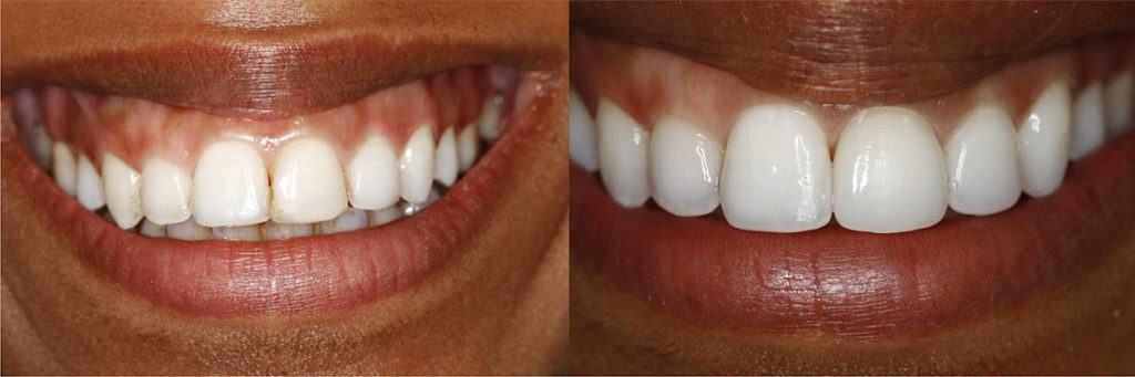 single front tooth crown